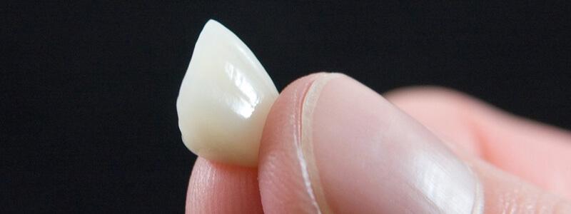 Korona porcelanowa